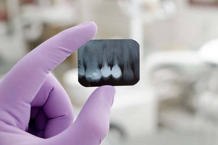 Зъболекар Пловдив